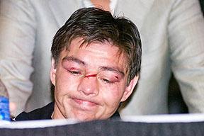 Смотрите фотогалерею Хорхе Арсе на пресс-конференции после боя