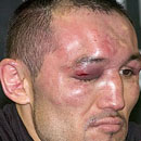 Gallery | Deep knockouts, sections, hematomas